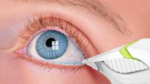 Test Lacarimazione Basile